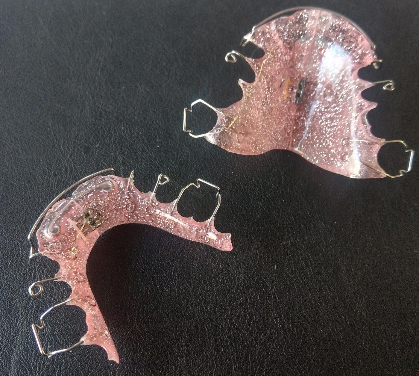herausnehmbare Kieferorthopädie